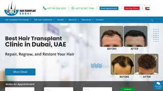 ACell PRP Therapy Treatment Dubai